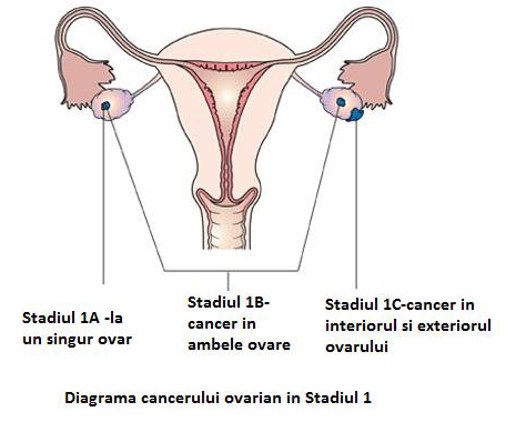Stadializare cancer ovarian