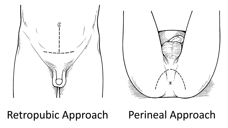 ce este operatia de prostata