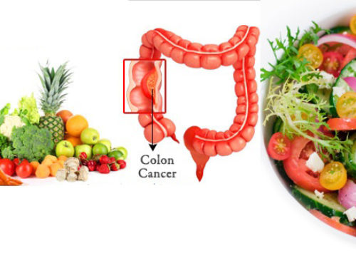 Dr. Adrian Copcea NUTRIŢIA ŞI CANCERUL COLORECTAL