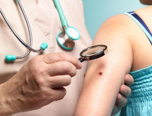 Cancerul de piele, factori de risc Controalele periodice, indispensabile în cazul melanomului