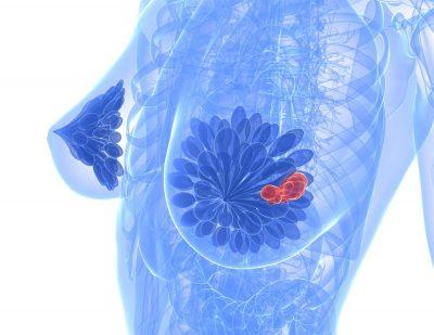 Tratamente pentru cancerul de sân