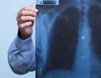 Testele pentru diagnosticarea cancerului pulmonar