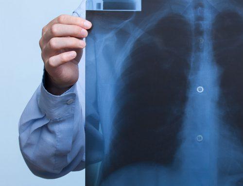Investigații recomandate și obligatorii Testele pentru diagnosticarea cancerului pulmonar