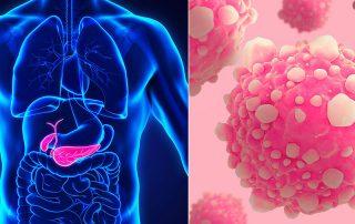 Cancerul de pancreas este al zecelea cel mai frecvent tip de cancer