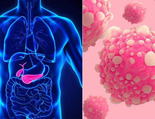 La ce trebuie să fiți atenți Vârsta, dieta, tutunul și alcoolul, factori de risc pentru cancerul de pancreas