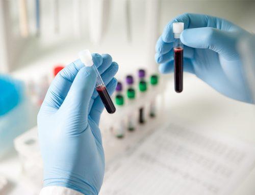 Depistarea precoce face un nou pas înainteCancerSEEK, un nou test de biopsie lichidă