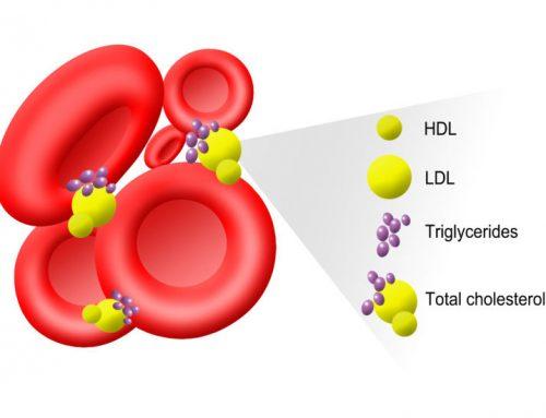 Dieta și cancerul Colesterolul hrănește cancerul de colon