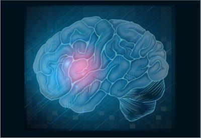 Viața cu tumori cerebrale
