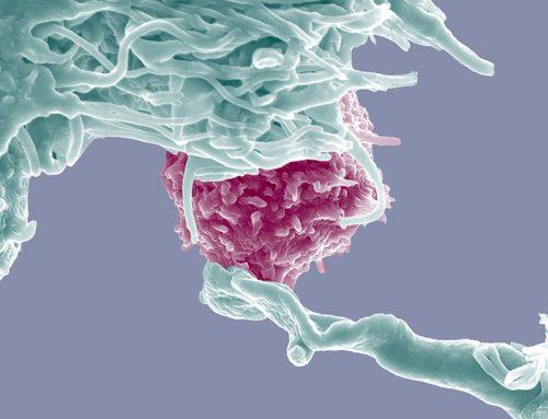 Cum luptă sistemul imunitar împotriva cancerului