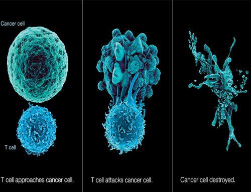 Concluziile studiului CheckMate-142 Imunoterapia cu nivolumab și de ipilumab, tratament de primă linie în cancerului colorectal