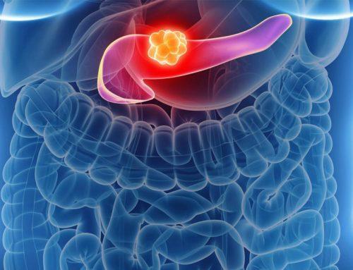 Efectul OlaparibRemisiunea cancerului pancreatic
