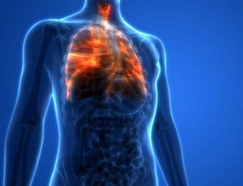 Terapie biologicăDurvalumab crește rata de supraviețuire pentru cancerul pulmonar