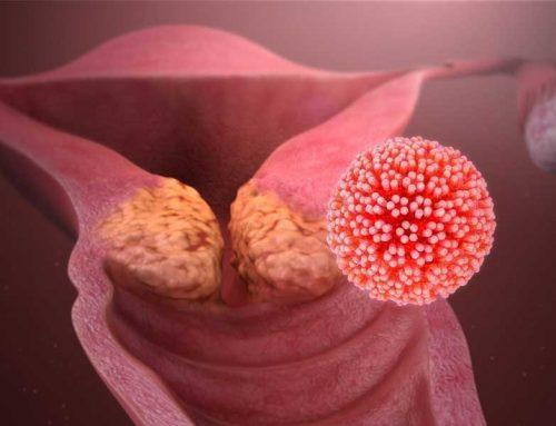 Screening-ul pentru cancerul de col uterin nu este suficientVaccinarea HPV nu influențează fertilitatea
